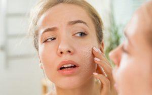 Qué hacer cuando tienes la piel seca